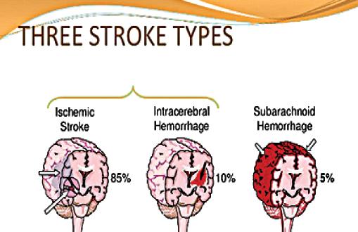 یافتن درمانی ایمن تر برای استروک حاد